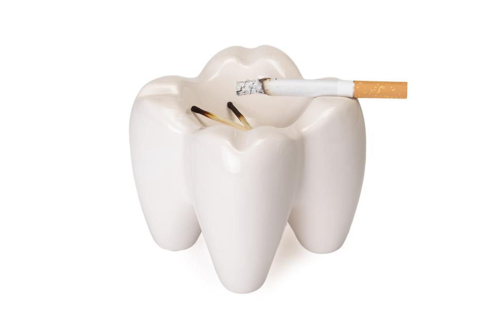 インプラント治療と喫煙の関係