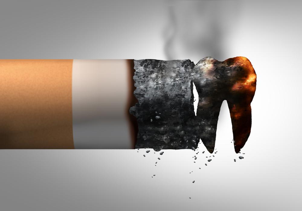 インプラント治療が終了しても禁煙すべき?