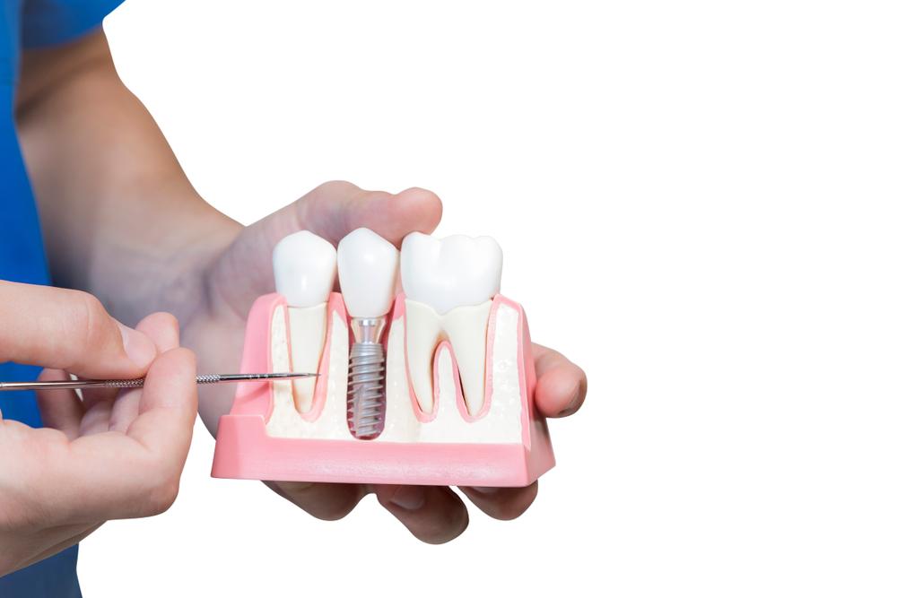 健康な歯への影響を与えない