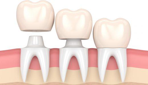 インプラント治療で人工歯根と人工歯を接着させる方法「セメントタイプ」とは?