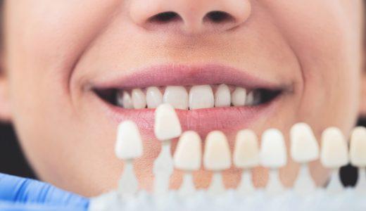 前歯をインプラントにする場合に注意点が多い理由と成功の秘訣を解説