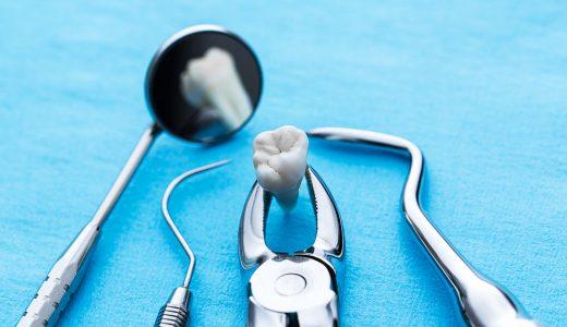 抜歯が必要になる原因は何?抜歯が必要な理由や予防策も解説