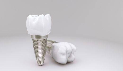 インプラントの人口歯とアバットメントに使用される素材を紹介